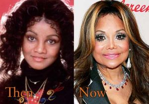 stars who aged badly