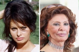 Hollywood Stars Who Aged Badly